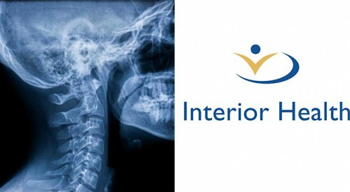Interior Health warns thousands of X-rays read in B.C.'s Interior may have inaccuracies