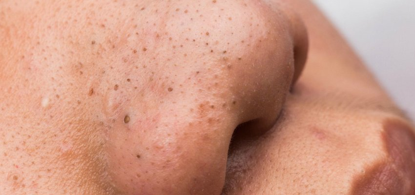 Having acne actually helps protect your skin from ageing